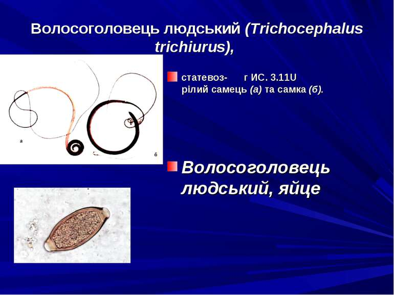 Волосоголовець людський (Trichocephalus trichiurus), статевоз- г ИС. 3.11U рі...