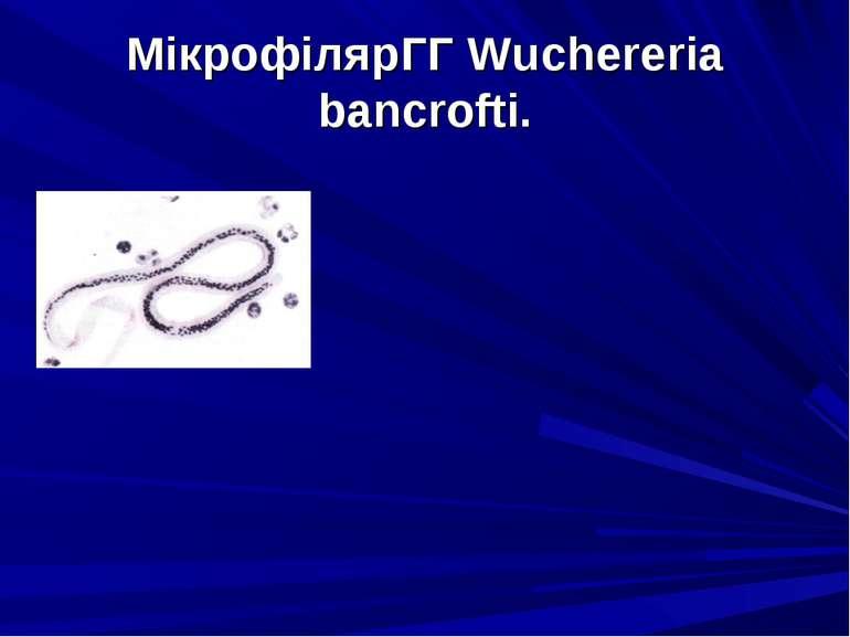 МікрофілярГГ Wuchereria bancrofti.