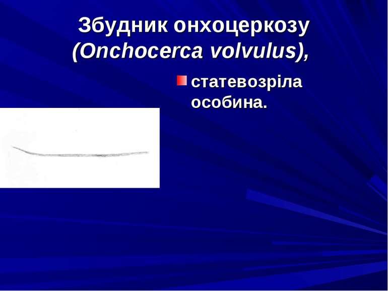Збудник онхоцеркозу (Onchocerca volvulus), статевозріла особина.