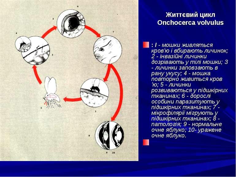 Життєвий цикл Onchocerca volvulus : I - мошки живляться кров'ю і вбирають лич...