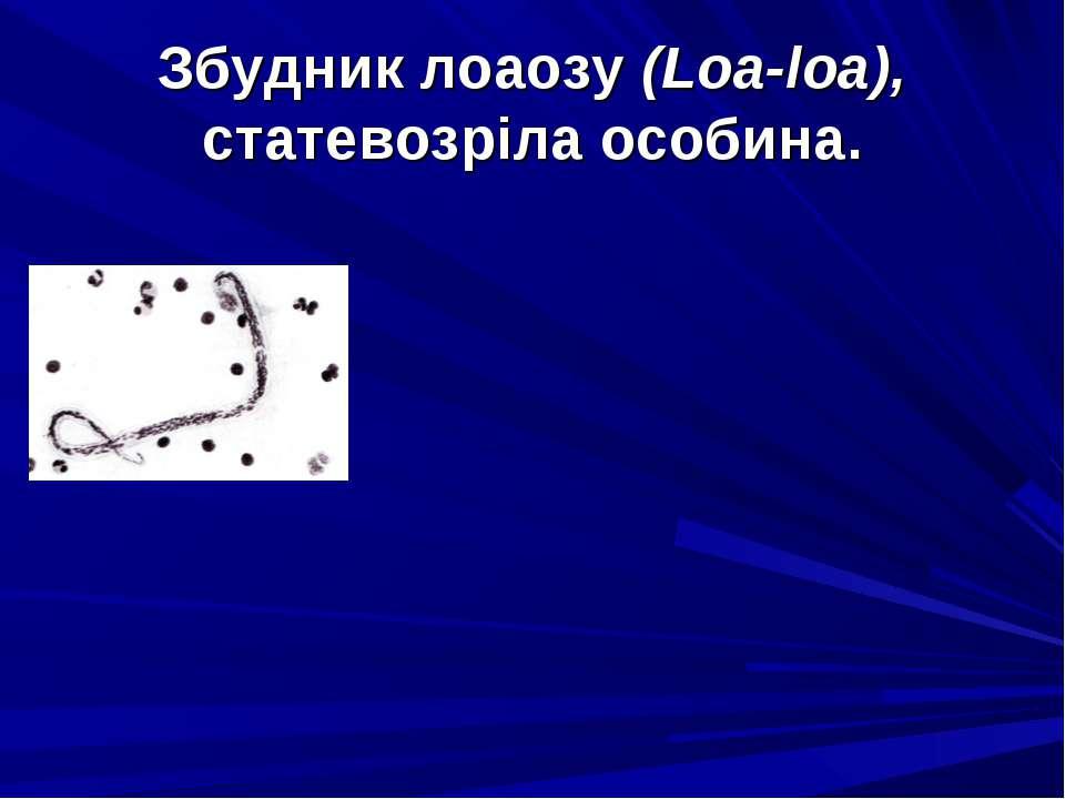 Збудник лоаозу (Loa-loa), статевозріла особина.