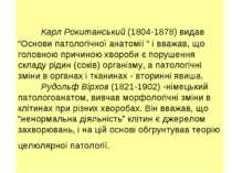 """Карл Рокитанський (1804-1878) видав """"Основи патологічної анатомії """" і вважав,..."""
