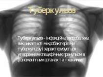 Туберкульоз Туберкульоз - інфекційна хвороба, яка викликається мікробактеріям...