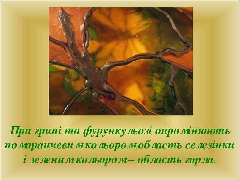 При грипі та фурункульозі опромінюють помаранчевим кольором область селезінки...
