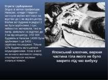 Японський хлопчик, верхня частина тіла якого не було закрито під час вибуху В...