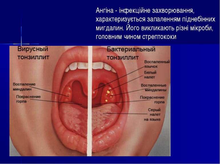 Ангіна - інфекційне захворювання, характеризується запаленням піднебінних миг...