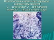 Патогістологічна картина при виразково-некротичному стоматиті 1 — зона некроз...