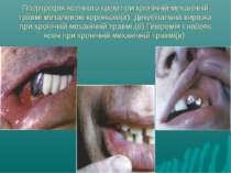 Гіпертрофія ясенного краю при хронічній механічній травмі металевою коронкою(...