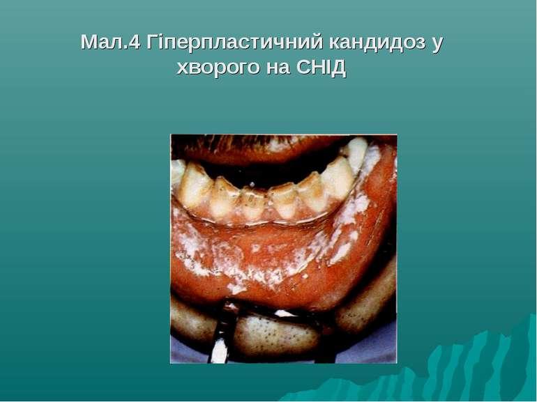 Мал.4 Гіперпластичний кандидоз у хворого на СНІД