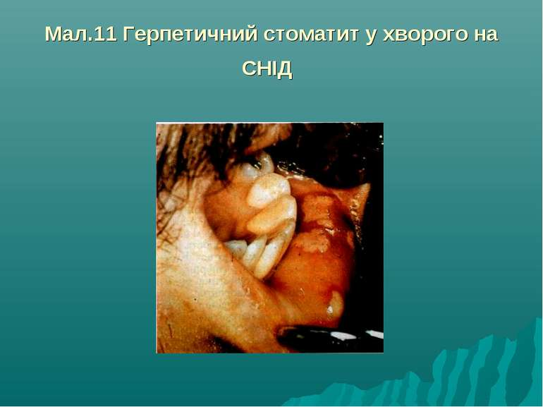 Мал.11 Герпетичний стоматит у хворого на СНІД