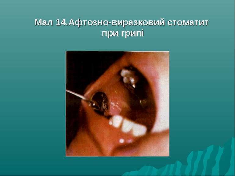 Мал 14.Афтозно-виразковий стоматит при грипі