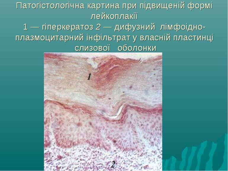 Патогістологічна картина при підвищеній формі лейкоплакії 1 — гіперкератоз 2 ...