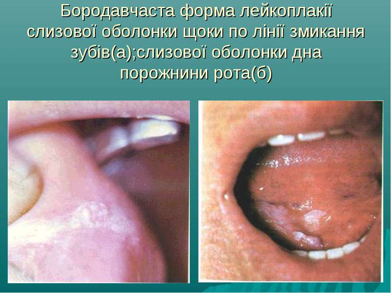 Бородавчаста форма лейкоплакії слизової оболонки щоки по лінії змикання зубів...