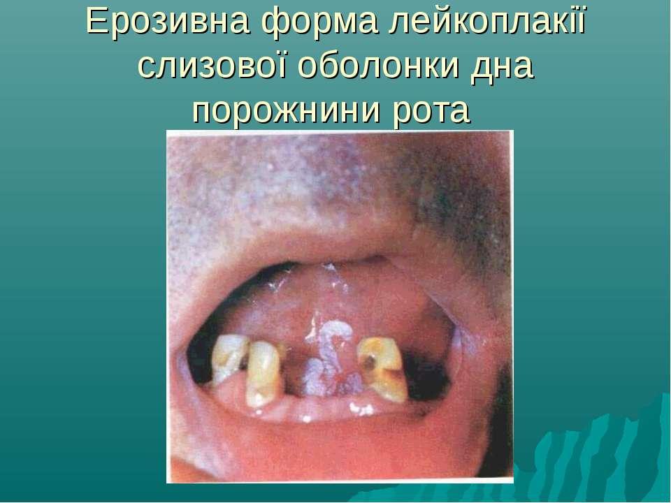 Ерозивна форма лейкоплакії слизової оболонки дна порожнини рота