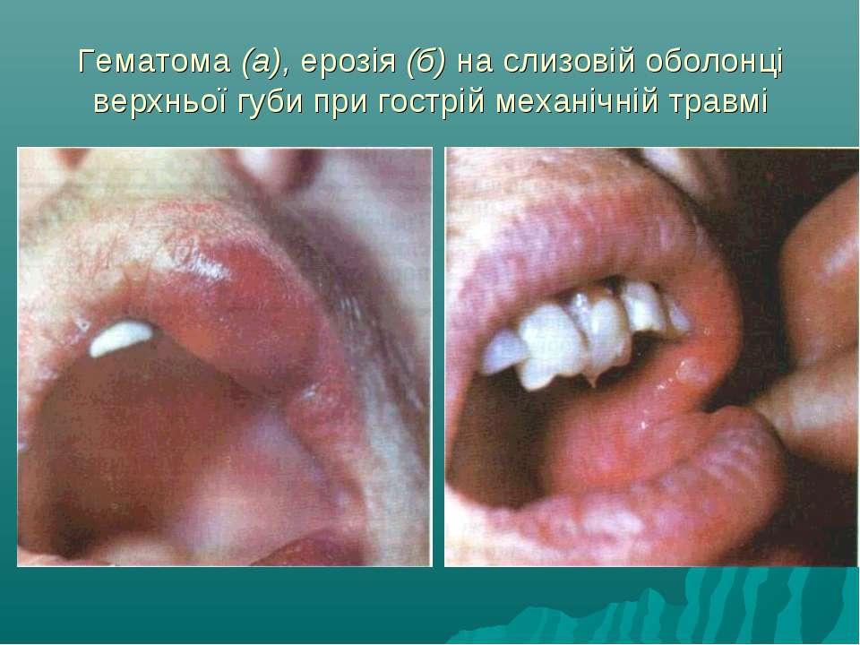 Гематома (а), ерозія (б) на слизовій оболонці верхньої губи при гострій механ...