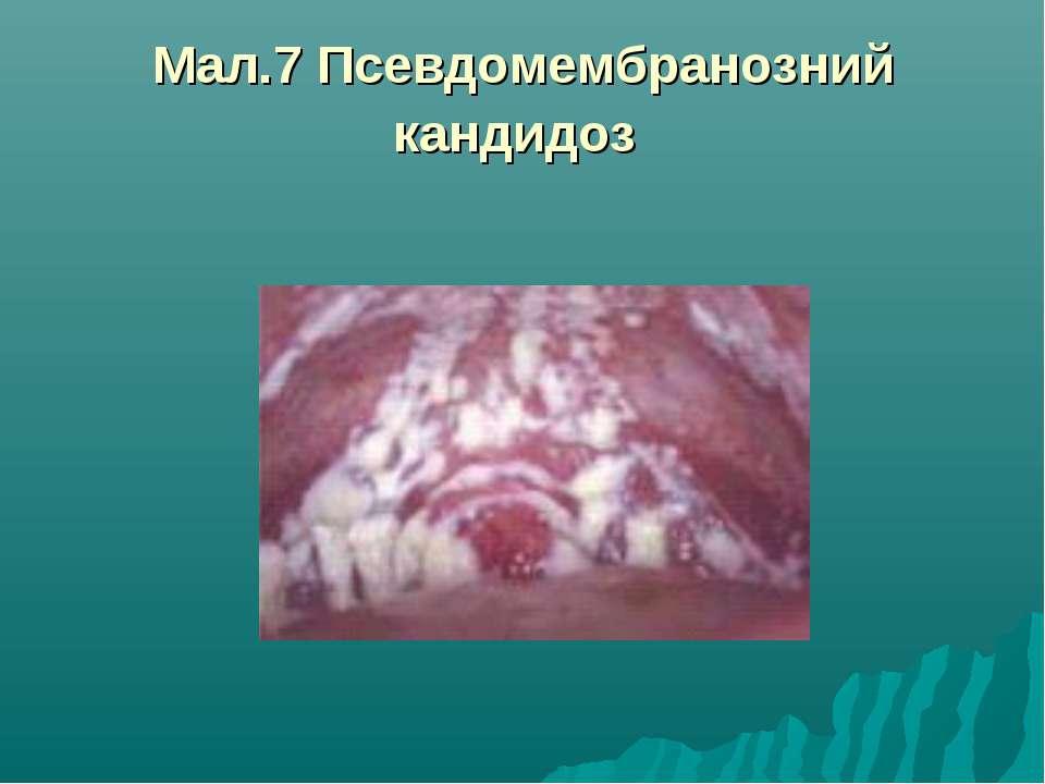 Мал.7 Псевдомембранозний кандидоз
