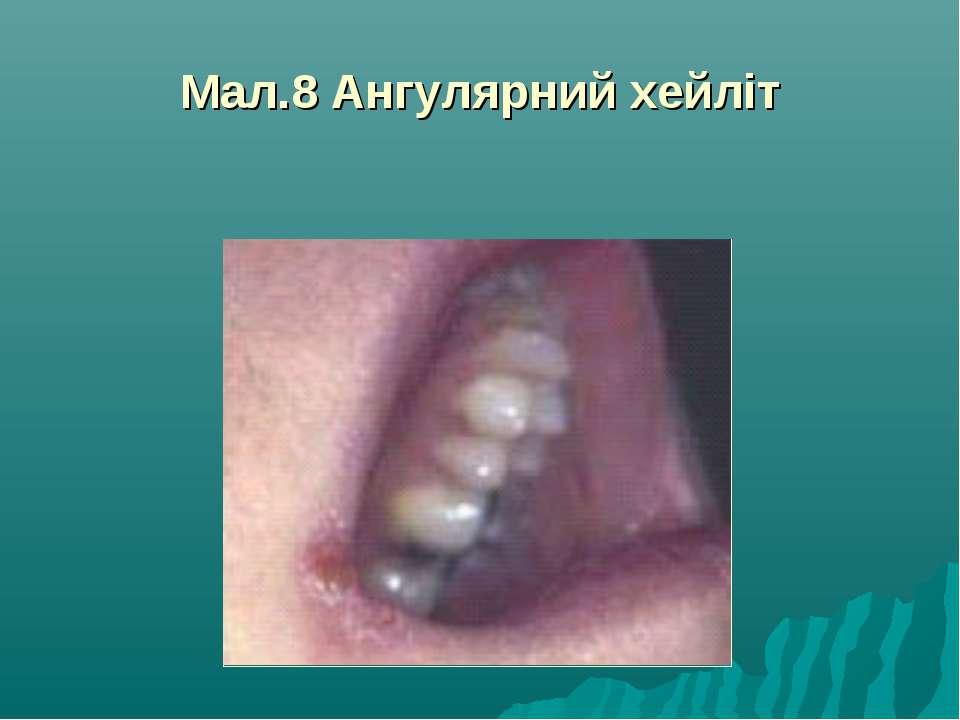 Мал.8 Ангулярний хейліт