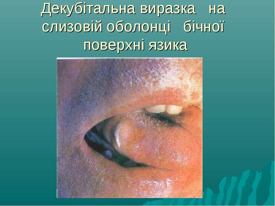 Декубітальна виразка на слизовій оболонці бічної поверхні язика