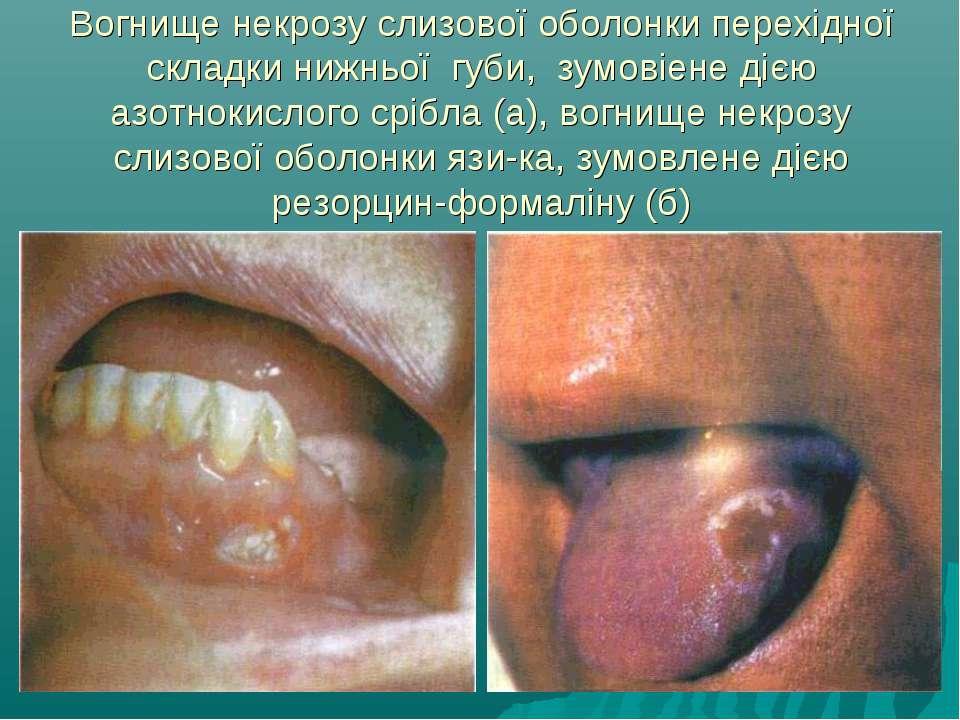 Вогнище некрозу слизової оболонки перехідної складки нижньої губи, зумовіене ...