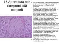 16.Артеріола при гіпертонічній хворобі Доклінічна стадія – гіпертрофія м'язов...