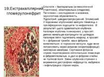 19.Екстракапілярний гломерулонефрит Етіологія – бактеріальна (в-гемолітичний ...