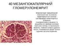 40 МЕЗАНГІОКАПІЛЯРНИЙ ГЛОМЕРУЛОНЕФРИТ Мікропрепарат зафарбований гематоксилін...