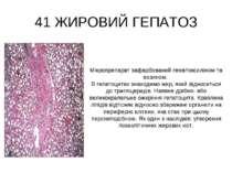 41 ЖИРОВИЙ ГЕПАТОЗ Мікропрепарат зафарбований гематоксиліном та еозином. В ге...