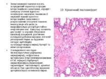 Хронічний пієлонефрит Склеротичні зміни сполучаються з ексудативно-некротични...