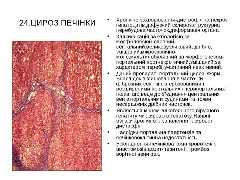 24.ЦИРОЗ ПЕЧІНКИ Хронічне захворювання-дистрофія та некроз гепатоцитів,дифузн...