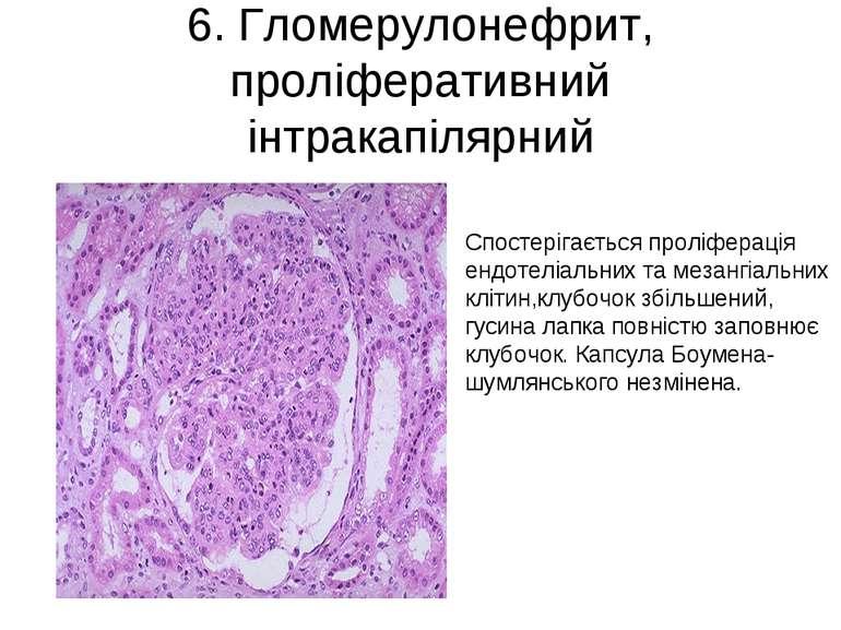 6. Гломерулонефрит, проліферативний інтракапілярний Спостерігається проліфера...