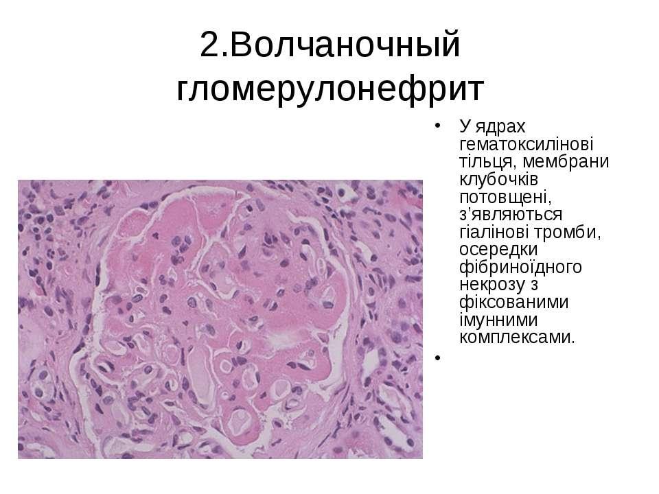 2.Волчаночный гломерулонефрит У ядрах гематоксилінові тільця, мембрани клубоч...