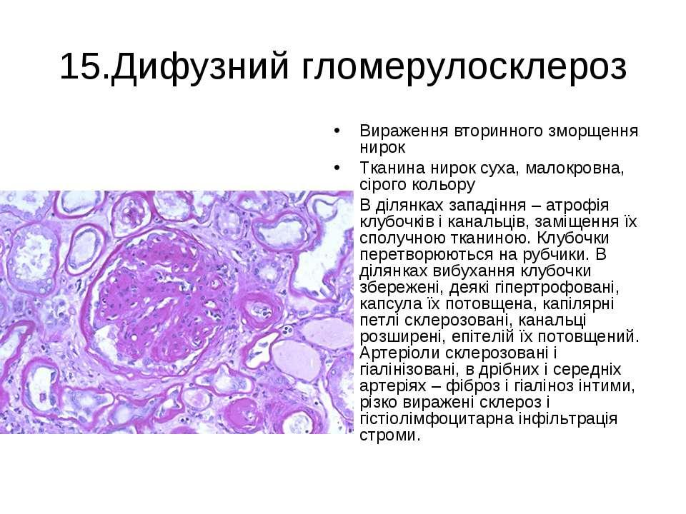 15.Дифузний гломерулосклероз Вираження вторинного зморщення нирок Тканина нир...
