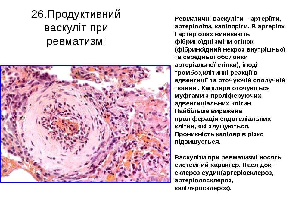 26.Продуктивний васкуліт при ревматизмі Ревматичні васкуліти – артеріїти, арт...