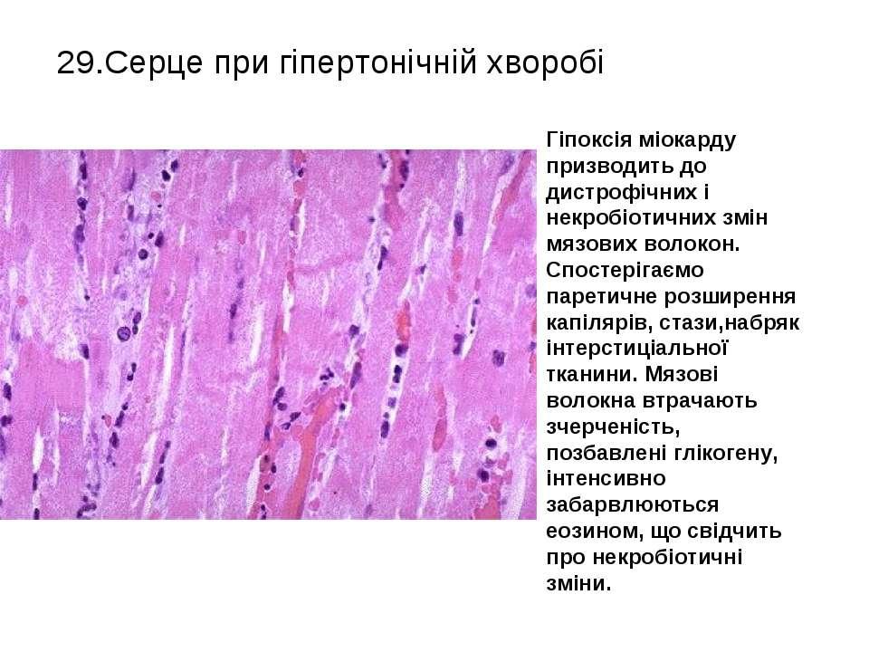 29.Серце при гіпертонічній хворобі Гіпоксія міокарду призводить до дистрофічн...