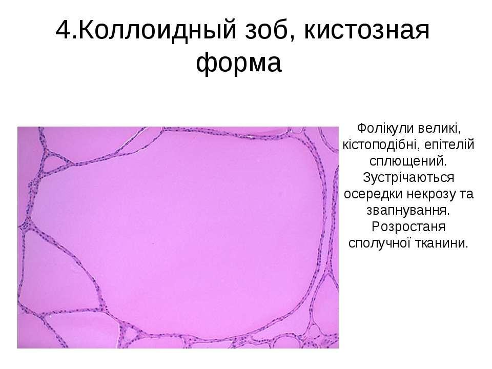 4.Коллоидный зоб, кистозная форма Фолікули великі, кістоподібні, епітелій спл...