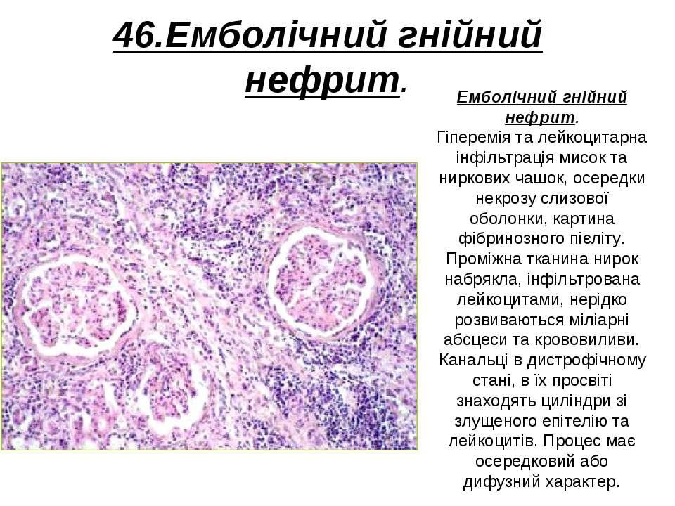46.Емболічний гнійний нефрит. Емболічний гнійний нефрит. Гіперемія та лейкоци...
