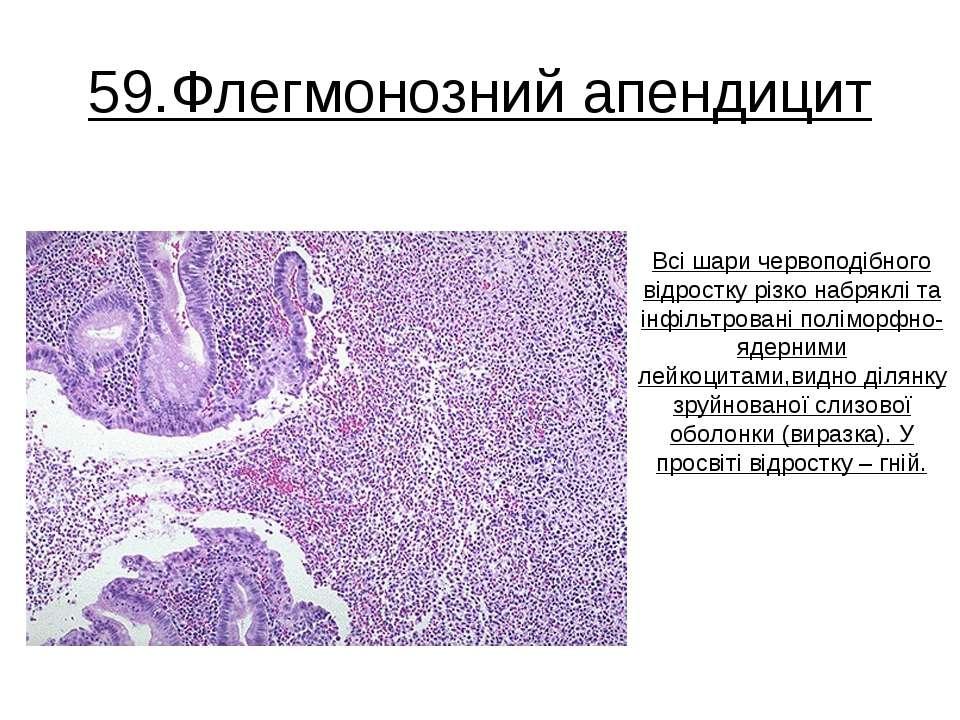 59.Флегмонозний апендицит Всі шари червоподібного відростку різко набряклі та...