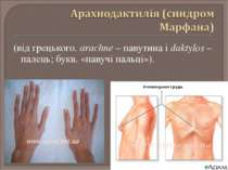 (від грецького. arachne – павутина і daktylos – палець; букв. «павучі пальці»).