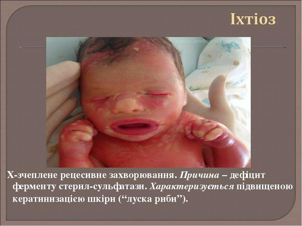 Х-зчеплене рецесивне захворювання. Причина – дефіцит ферменту стерил-сульфата...