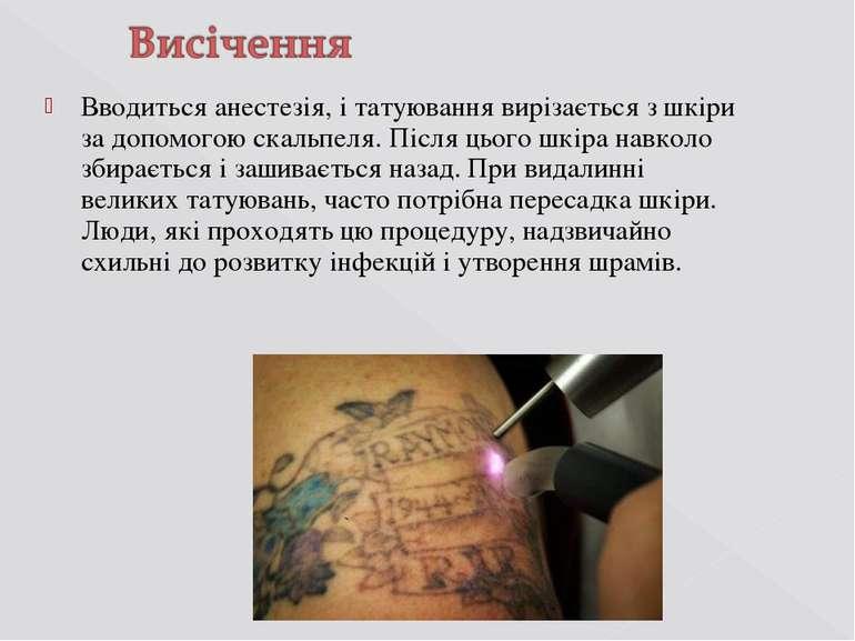 Вводиться анестезія, і татуювання вирізається з шкіри за допомогою скальпеля....