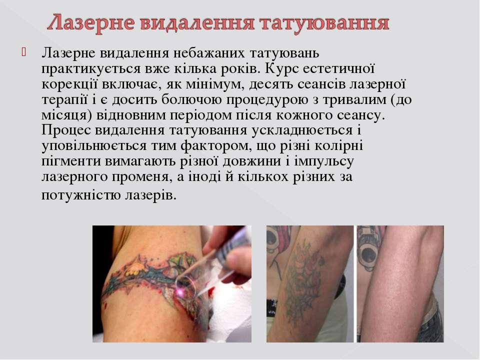 Лазерне видалення небажаних татуювань практикується вже кілька років. Курс ес...