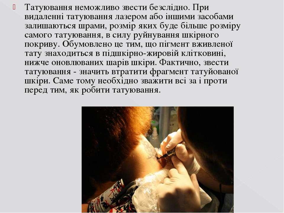 Татуювання неможливо звести безслідно. При видаленні татуюваннялазеромабо і...
