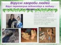 Вірусні хвороби людей Вірус перетворив індонезійця в людину - дерево Нарости,...