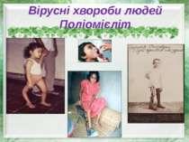 Вірусні хвороби людей Поліомієліт