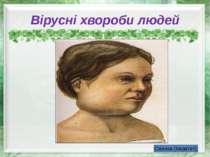 Вірусні хвороби людей Свинка (паратит)