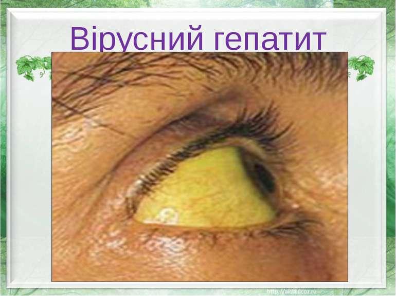 Вірусний гепатит