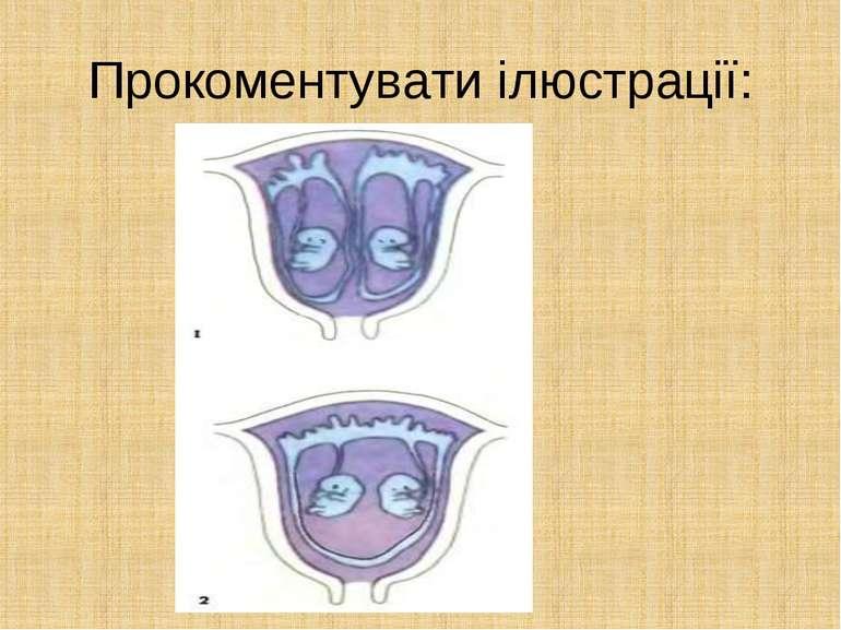 Прокоментувати ілюстрації: