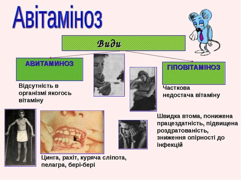 Види АВИТАМИНОЗ ГІПОВІТАМІНОЗ Відсутність в організмі якогось вітаміну Цинга,...