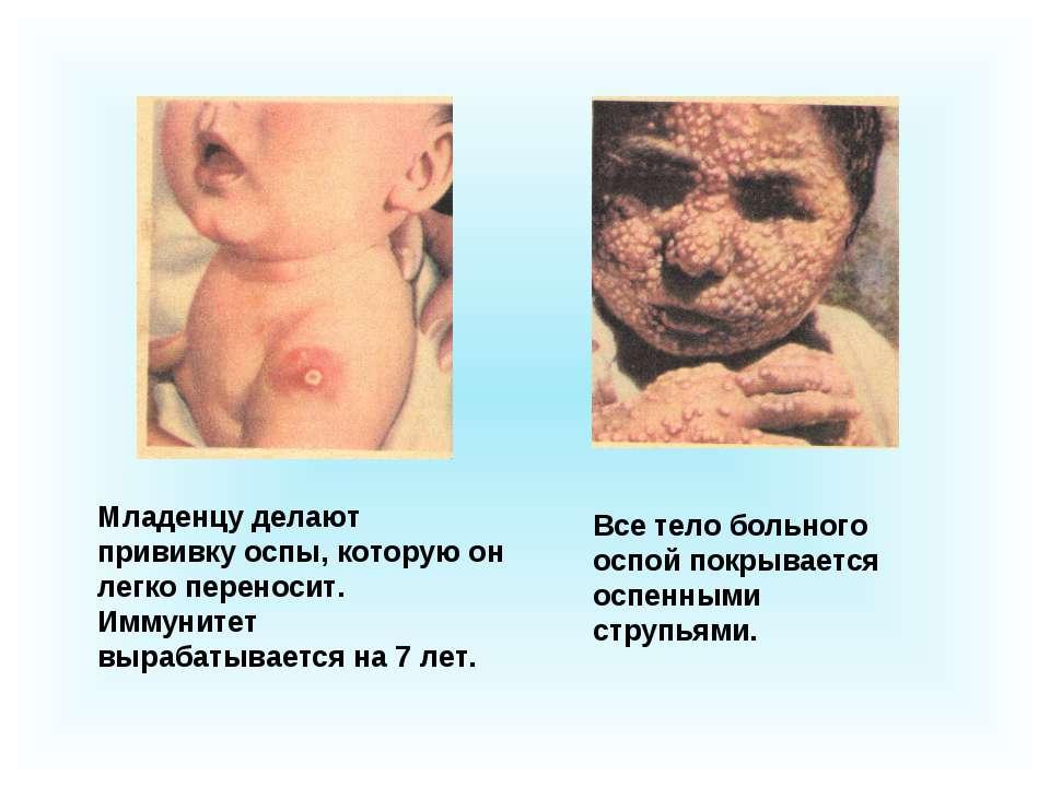 Младенцу делают прививку оспы, которую он легко переносит. Иммунитет вырабаты...