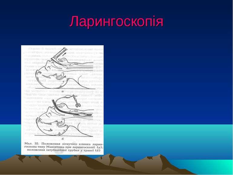 Ларингоскопія